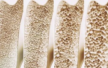 الصورة: الصورة: مادة جديدة تعالج هشاشة العظام