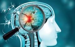 الصورة: الصورة: بحث عن تأثر مصابي «كورونا» بالجلطات الدماغية في أكبر مجلة عالمية