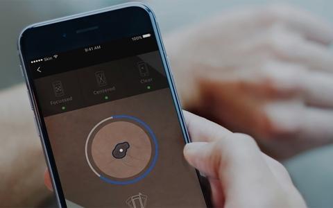 الصورة: الصورة: جهاز محمول يرصد المؤشرات الأولية للسرطان في المنزل