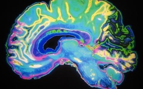 الصورة: الصورة: باحثون يفككون شيفرة خرائط الألوان دماغياً