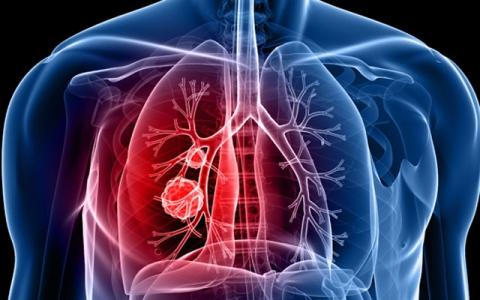 الصورة: الصورة: 5 أعراض مفاجئة للإصابة بسرطان الرئة