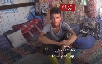 الصورة: الصورة: ميليشا الحوثي .. تبتر أحلام أسامة