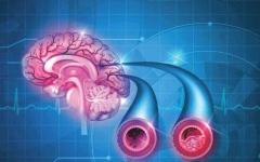 الصورة: الصورة: التقنيات المتطورة نافذة أمل لمرضى السكتات الدماغية