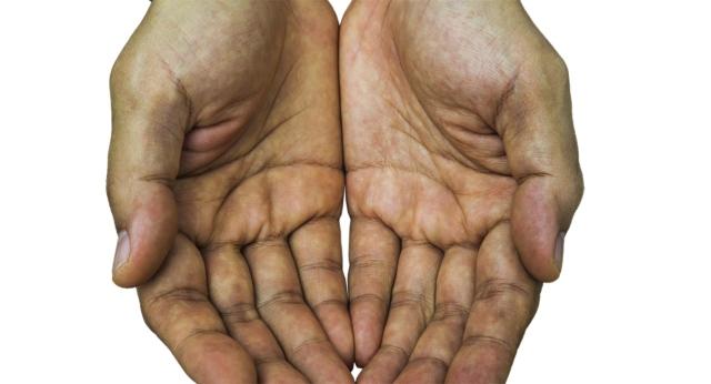 صورة علامة في كف اليد قد تشير إلى مرض قاتل – البيان الصحي