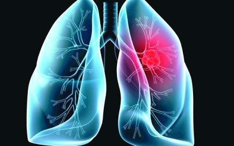 الصورة: الصورة: 5 علامات تحذيرية لسرطان الرئة