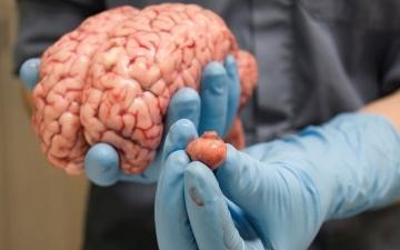 الصورة: الصورة: هذه أخطر أطعمة على المخ
