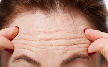 الصورة: الصورة: إنجاز طبي مصري..اكتشاف سر تجاعيد الوجه وجراحة جديدة لعلاجها