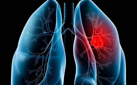 الصورة: الصورة: أعراض الإصابة بسرطان الرئة