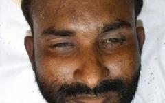 الصورة: الصورة: شرطة دبي تدعو الجمهور للتعرف على صاحب جثة مجهولة